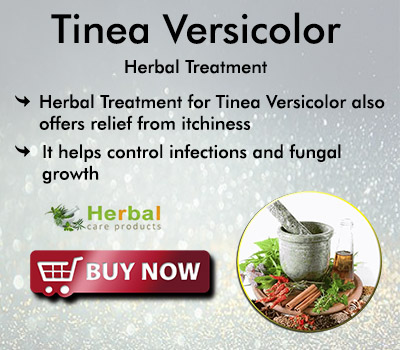 https://www.herbal-care-products.com/tinea-versicolor