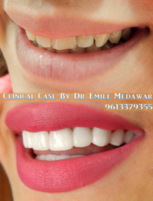 Facettes Dentaires Au Liban Souriez Avec Confiance Et