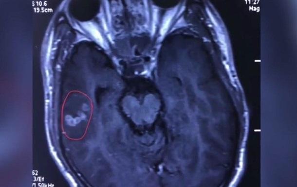 У Китаї з мозку чоловіка дістали глиста