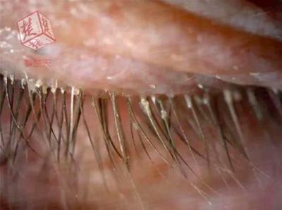 Woman Who Didn't Wash Her Pillow Case in Five Years Has Eyelashes Crawling with Mites