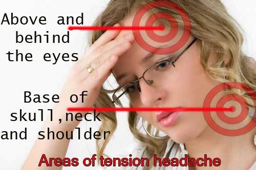 Tension Headache Symptoms | Symptoms of Disease