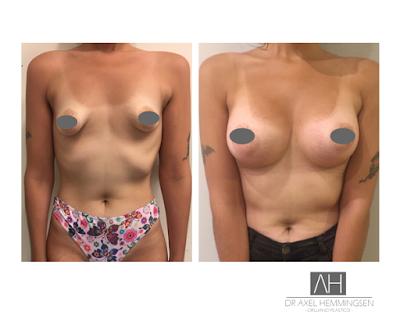 ¿Qué sabes de prótesis mamarias?