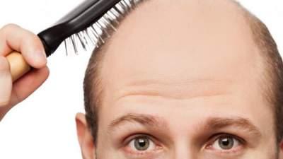 14 penyebab rambut rontok dan cara mengatasinya. rambut rontok pada pria diambil  ... 54379c3305