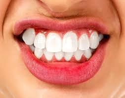 Tips Tentang Prosedur Pemutihan Gigi Seputar Kesehatan