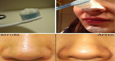 Un método que realmente funciona: El uso del cepillo de dientes y deshacerse de las espinillas de inmediato!
