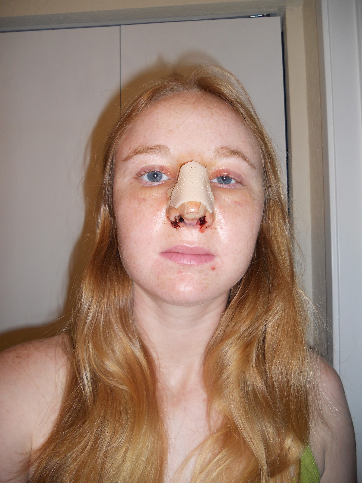 My Septoplasty and Me: Post-Op Day 3
