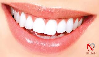 Nha khoa uy tín Q10 Dr Ngọc bọc răng sứ Bảo hành 10 năm