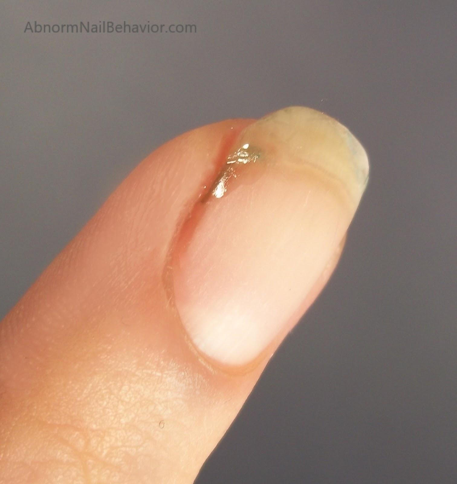 Abnorm Nail Behavior
