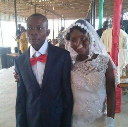 Photo: Woman born with facial deformity gets married in Anambra State