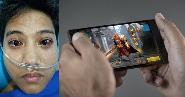 Dahil sa labis na paglalaro ng mobile games, isang lalaki, Pumutok ang Ugat sa Mata!
