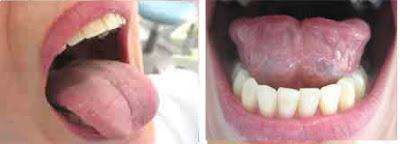 """<Imgsrc =""""Autoexamen-oral-lengua-y-suelo-de-boca.jpg"""" width = """"442"""" height """"159"""" border = """"0"""" alt = """"Autoexamen oral: Lengua, cara ventral de lengua y suelo de boca."""">"""
