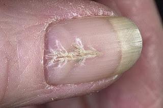 Наращивание проблемных ногтей