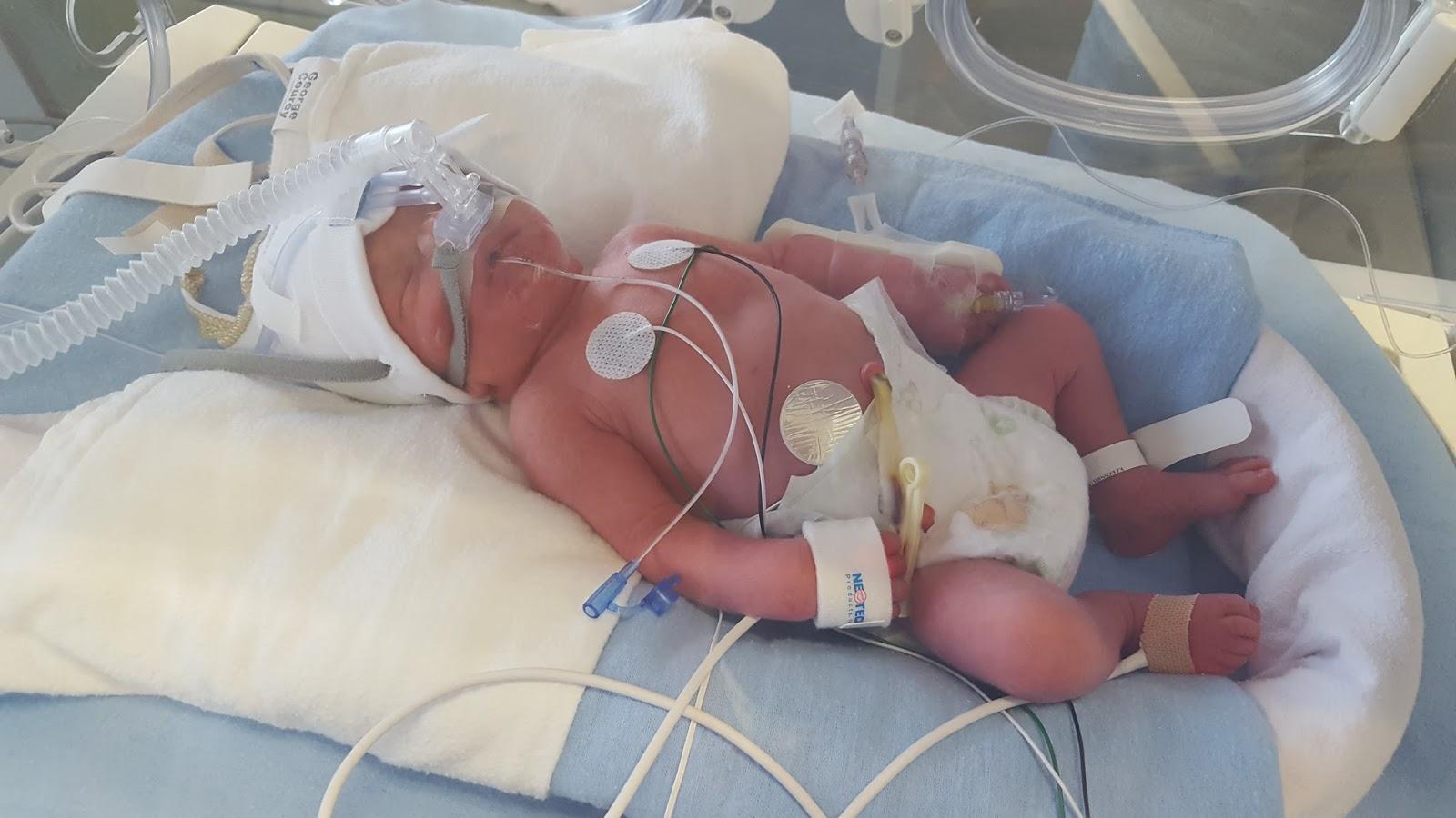 Little Cotton Socks: My Twins Birth Story: Walker & Conrad