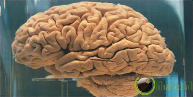 Alien Berbentuk Otak Besar
