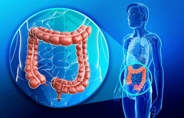 نظف القولون بهذه الـ 8 علاجات وفي أسرع وقت ممكن أمراض خطيرة جداً قد يسببها تلوث أو انسداد القولون.. وهكذا تعالجها