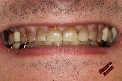 Причини за скърцането  със зъби и методи за лечение