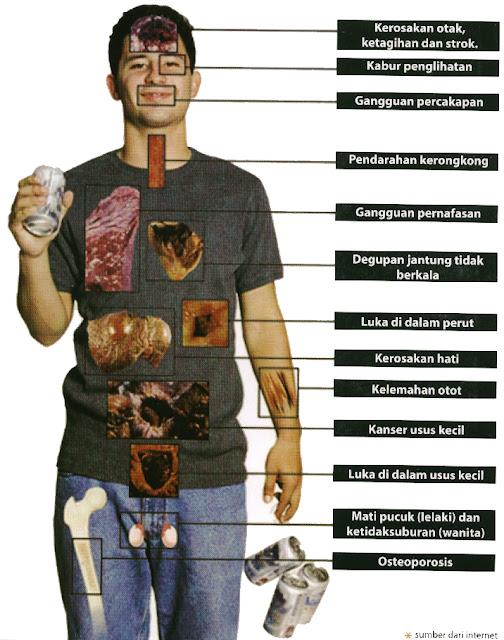 Kesan Buruk Alkohol Pada Sistem Imun