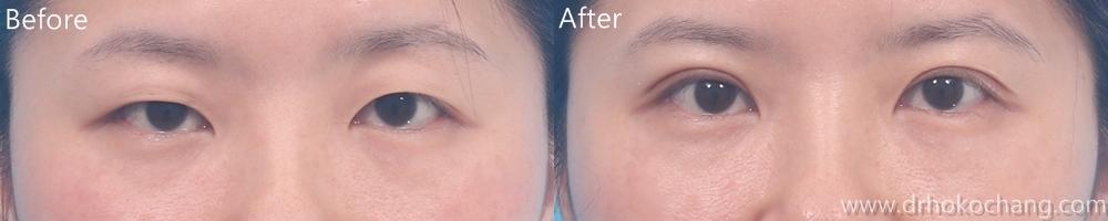 大小眼提眼肌手術台中推薦-ptosis02
