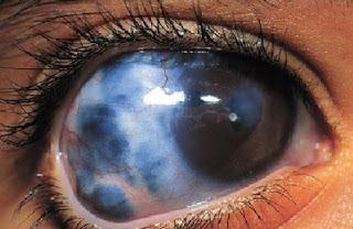 cara mengobati glaukoma