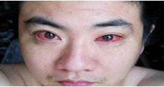 Rapaz é diagnosticado com câncer nos olhos por algo que você faz todas as noites