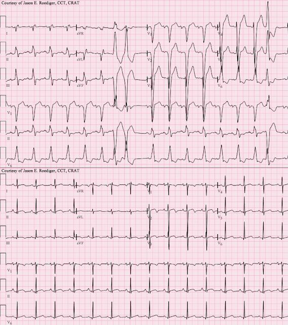 electrocardiogram ECG EKG elektrokardiografi kardiomiopati dilatasi dilated cardiomiopathy