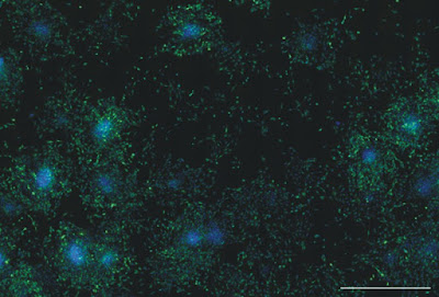 Figure 1. NIH3T3 Mouse fibroblasts expressing GFP.