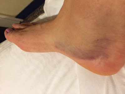 My foot injury from running the Star Wars Half Marathon