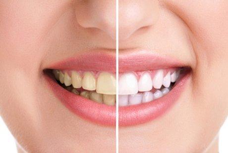 1 Cara Menghilangkan Karang Gigi Tanpa Harus Ke Dokter Lika Liku