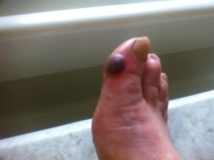 The foot of an ultramarathoner!