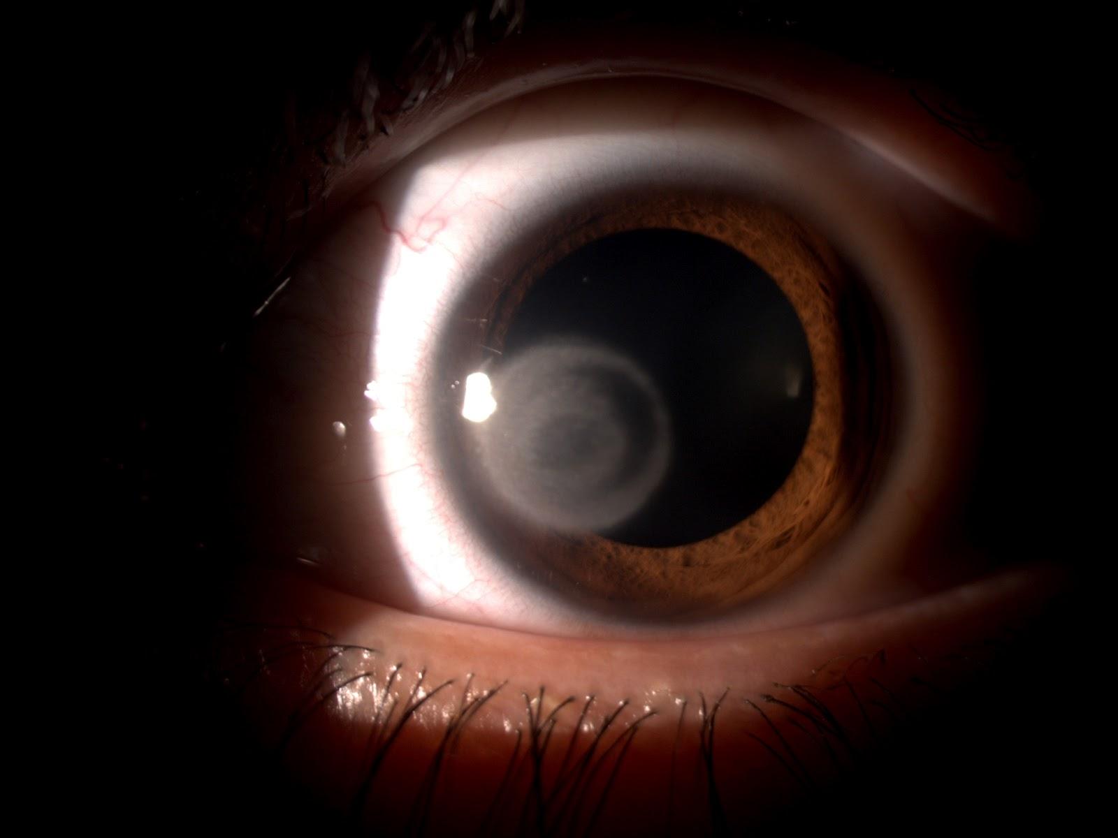 acanthamoeba ojo