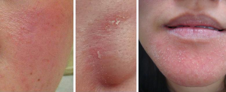 脂漏性皮膚炎症狀
