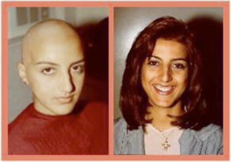Favoriser repousse cheveux apres chimiotherapie