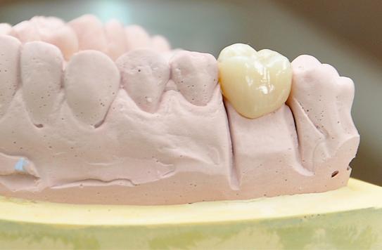 quy trình trồng răng sứ -2