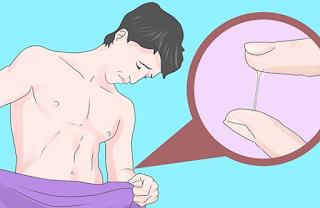 Ujung Penis Perih Panas dan Keluar Cairan Mirip Sperma