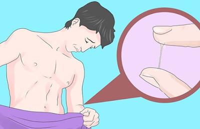 Gumpalan Lendir Nanah Putih Di Penis Dan Cara Mengobatinya