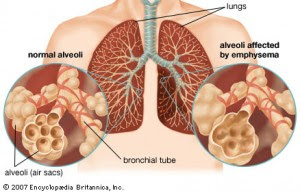 Penyakit Paru Paru Pneumonia