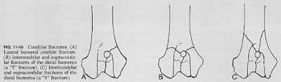 Prinsip Penanganan Patah Tulang (Fraktur) pada Hewan