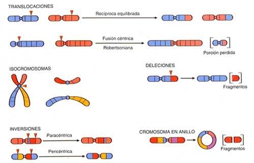 cuerpo calloso cromosoma 13 anillo de