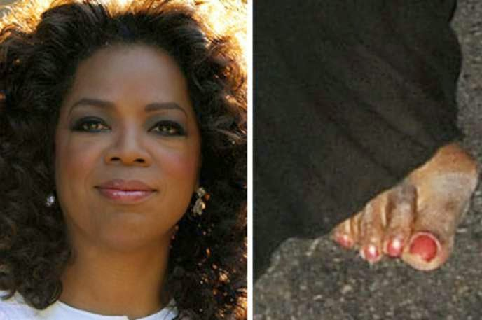 Beautiful From Head to Ankle! Celebrity Hammer Toes ...