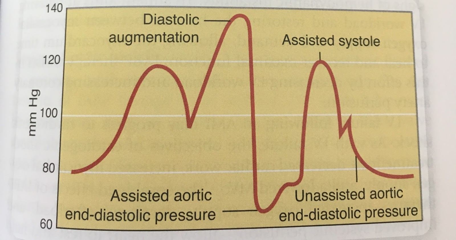 Forma de onda arterial en hipertensión sistémica significado de muesca dicrótica