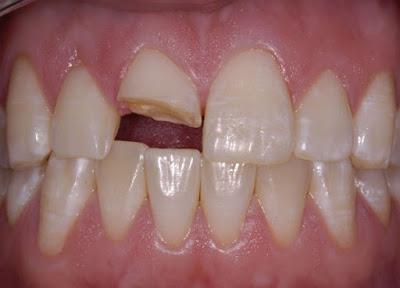 Bị gãy răng hàm không trồng lại có sao không ?