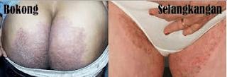 Obat Gatal Di kulit Selangkangan