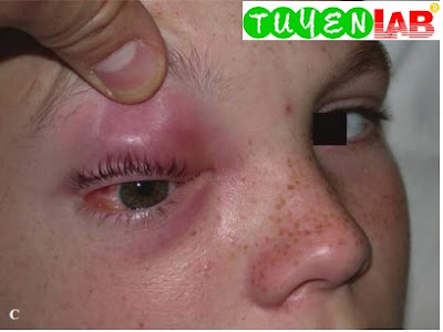 Same patient, frontal view demonstrating chemosis, purulent drainage, and gaze restriction