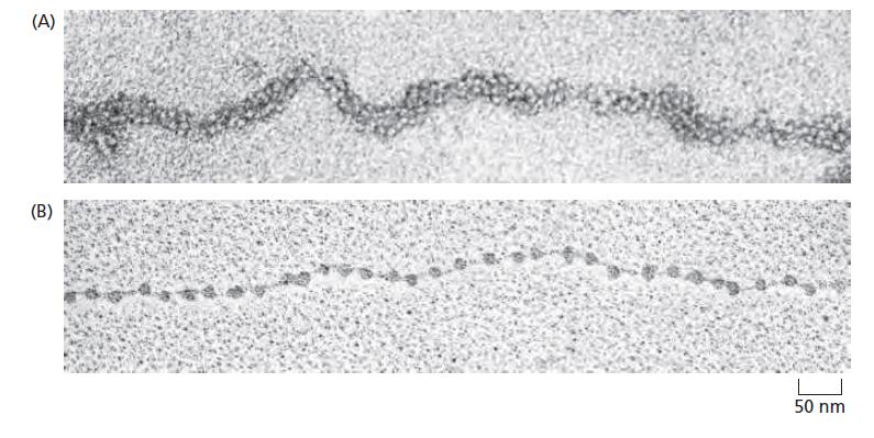 Genetics - : Nucleosomes : Basic Unit of Eukaryotic ...