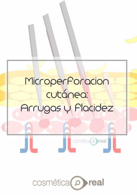 Microperforacion cutanea: Arrugas y flacidez
