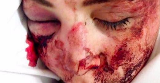 Emily, lâchement agressée en rue: comment un