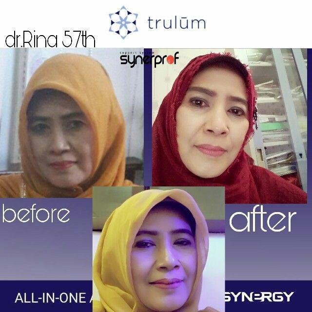 Trulum Skincare