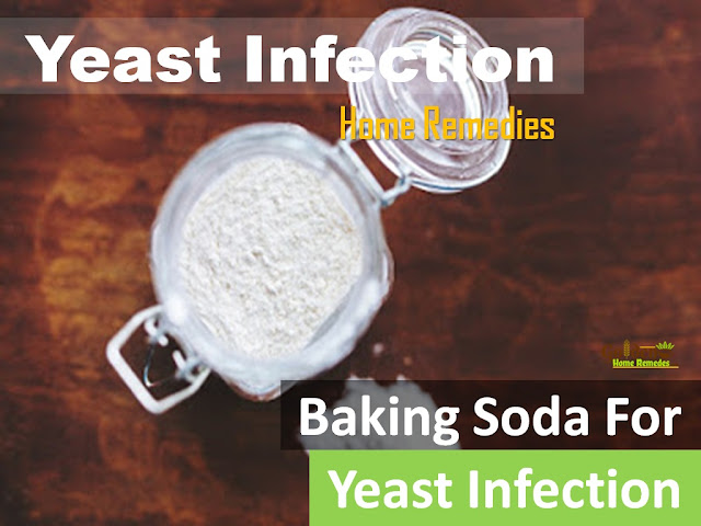 Baking Soda For Yeast Infection, Baking Soda and Yeast Infection, How To Get Rid Of Yeast Infection, Home Remedies For Yeast Infection, Vaginal yeast Infection, How To Use Baking Soda For Yeast Infection, Is Baking Soda Good For Yeast Infection
