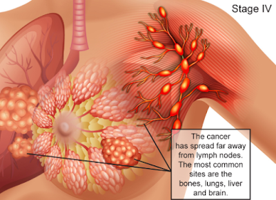 7 WEIRD THINGS THAT INCREASE THE RISK OF CANCER