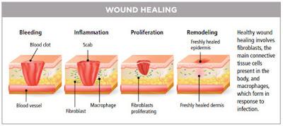 proses-penyembuhan-luka